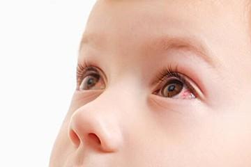 が 赤ちゃん 腫れる 目